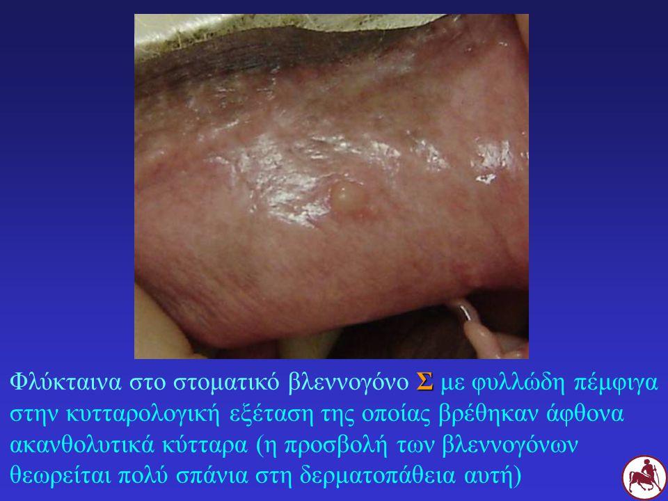 Φλύκταινα στο στοματικό βλεννογόνο Σ με φυλλώδη πέμφιγα στην κυτταρολογική εξέταση της οποίας βρέθηκαν άφθονα ακανθολυτικά κύτταρα (η προσβολή των βλεννογόνων θεωρείται πολύ σπάνια στη δερματοπάθεια αυτή)