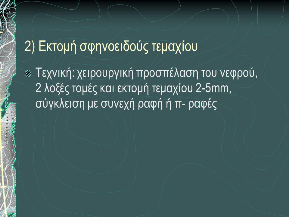 2) Εκτομή σφηνοειδούς τεμαχίου