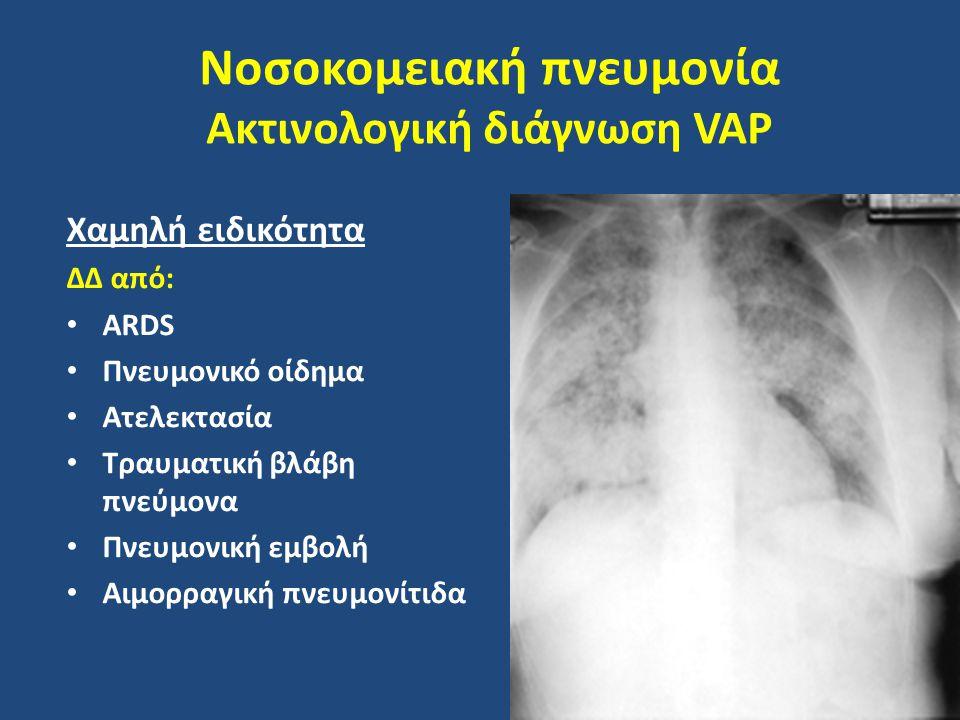 Νοσοκομειακή πνευμονία Ακτινολογική διάγνωση VAP