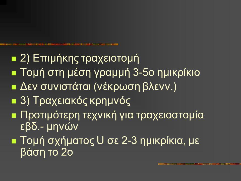 2) Επιμήκης τραχειοτομή