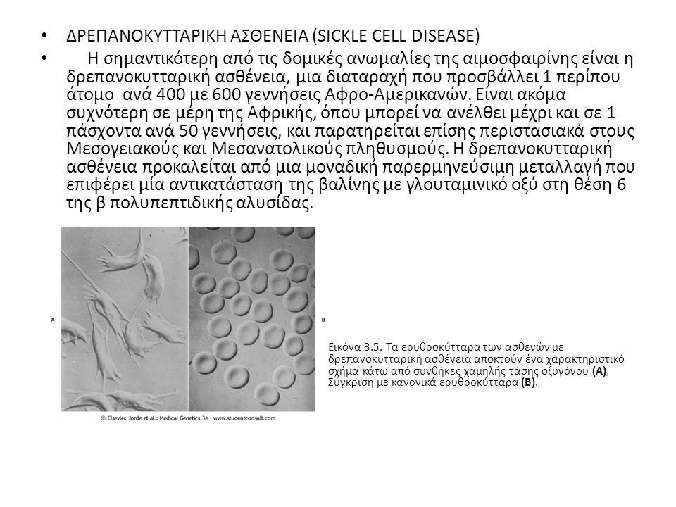 ΔΡΕΠΑΝΟΚΥΤΤΑΡΙΚΗ ΑΣΘΕΝΕΙΑ (SICKLE CELL DISEASE)
