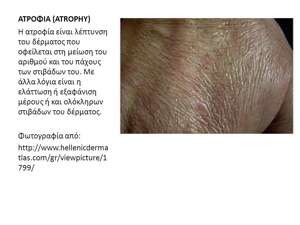 ΑΤΡΟΦΙΑ (ATROPHY)