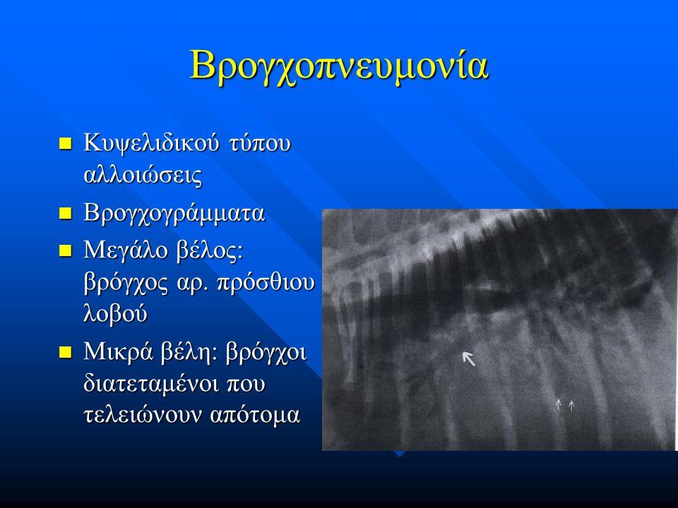 Βρογχοπνευμονία Κυψελιδικού τύπου αλλοιώσεις Βρογχογράμματα