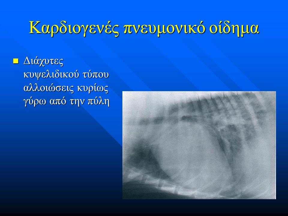 Καρδιογενές πνευμονικό οίδημα
