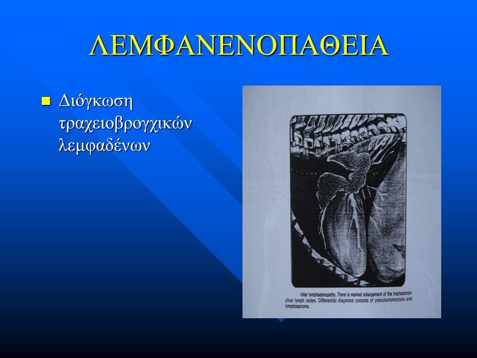 ΛΕΜΦΑΝΕΝΟΠΑΘΕΙΑ Διόγκωση τραχειοβρογχικών λεμφαδένων