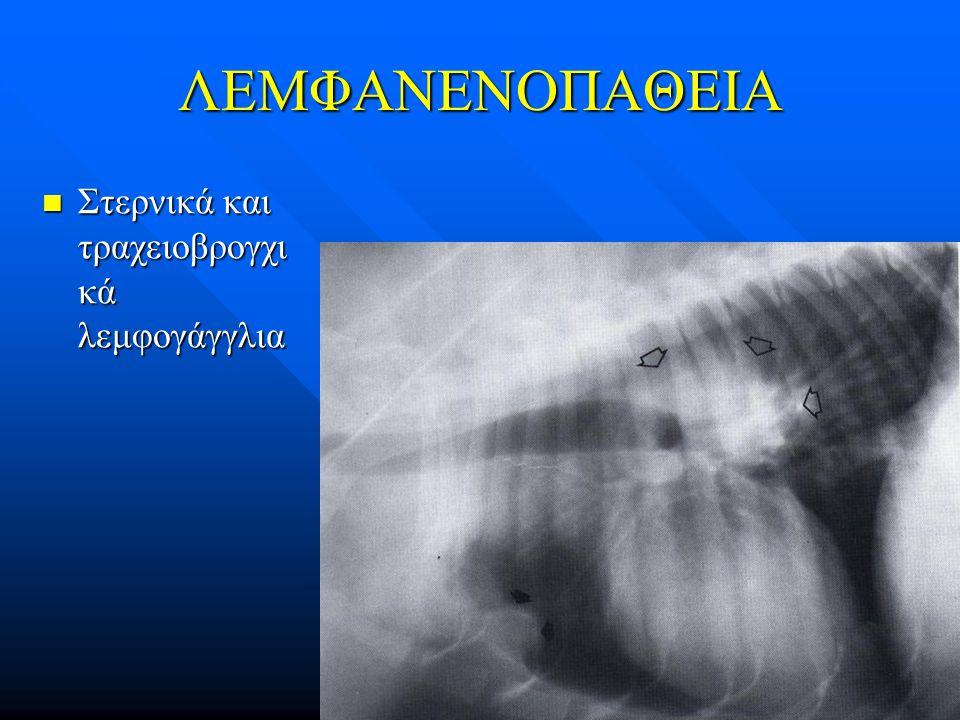 ΛΕΜΦΑΝΕΝΟΠΑΘΕΙΑ Στερνικά και τραχειοβρογχικά λεμφογάγγλια