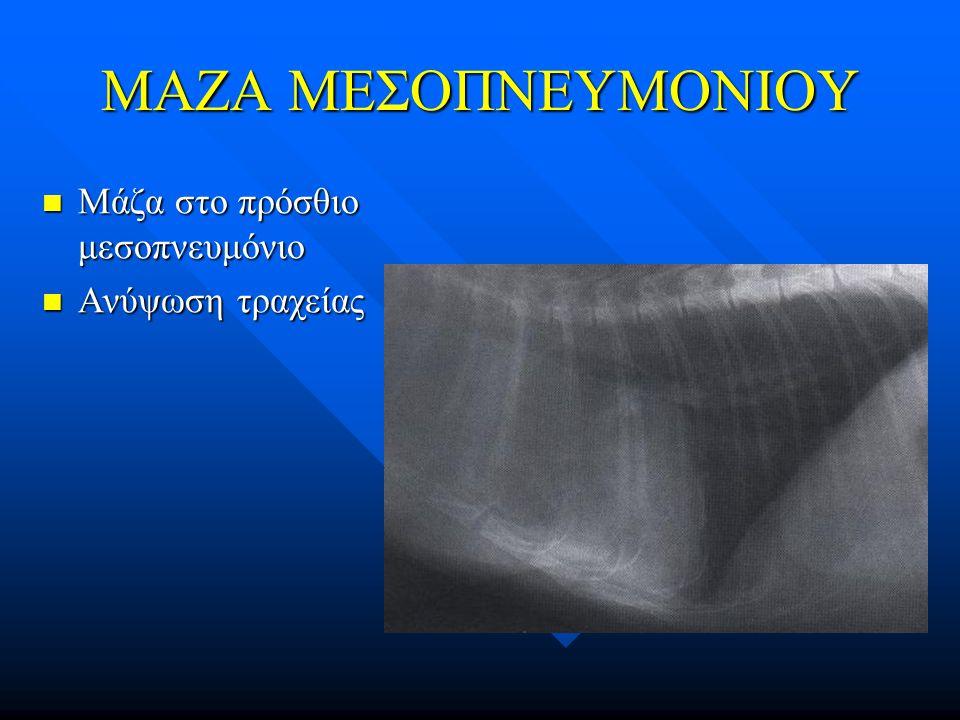 ΜΑΖΑ ΜΕΣΟΠΝΕΥΜΟΝΙΟΥ Μάζα στο πρόσθιο μεσοπνευμόνιο Ανύψωση τραχείας