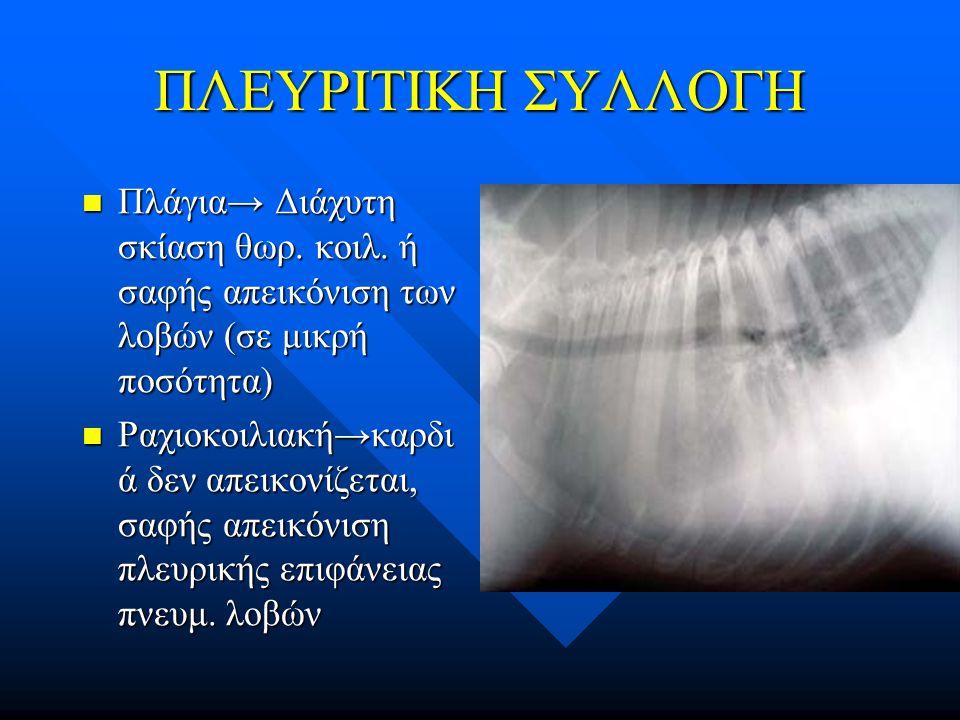 ΠΛΕΥΡΙΤΙΚΗ ΣΥΛΛΟΓΗ Πλάγια→ Διάχυτη σκίαση θωρ. κοιλ. ή σαφής απεικόνιση των λοβών (σε μικρή ποσότητα)