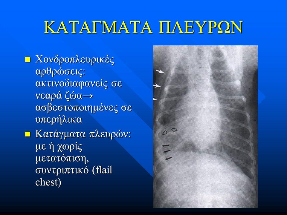 ΚΑΤΑΓΜΑΤΑ ΠΛΕΥΡΩΝ Χονδροπλευρικές αρθρώσεις: ακτινοδιαφανείς σε νεαρά ζώα→ ασβεστοποιημένες σε υπερήλικα.