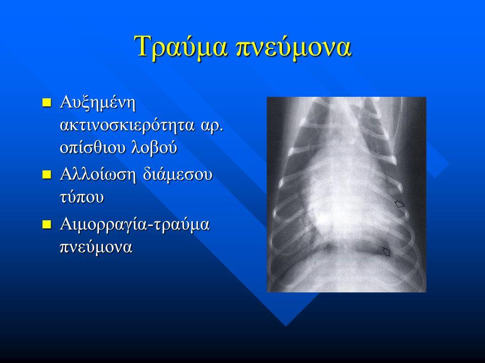 Τραύμα πνεύμονα Αυξημένη ακτινοσκιερότητα αρ. οπίσθιου λοβού