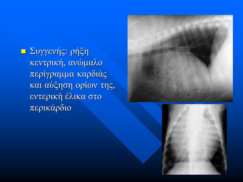 Συγγενής: ρήξη κεντρική, ανώμαλο περίγραμμα καρδιάς και αύξηση ορίων της, εντερική έλικα στο περικάρδιο