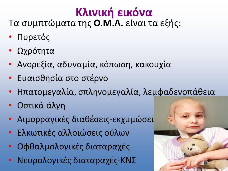 Κλινική εικόνα Τα συμπτώματα της Ο.Μ.Λ. είναι τα εξής: Πυρετός