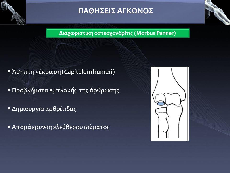 Διαχωριστική οστεοχονδρίτις (Morbus Panner)