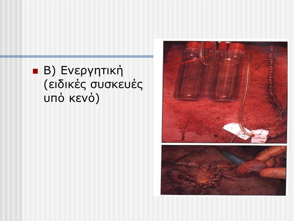 Β) Ενεργητική (ειδικές συσκευές υπό κενό)