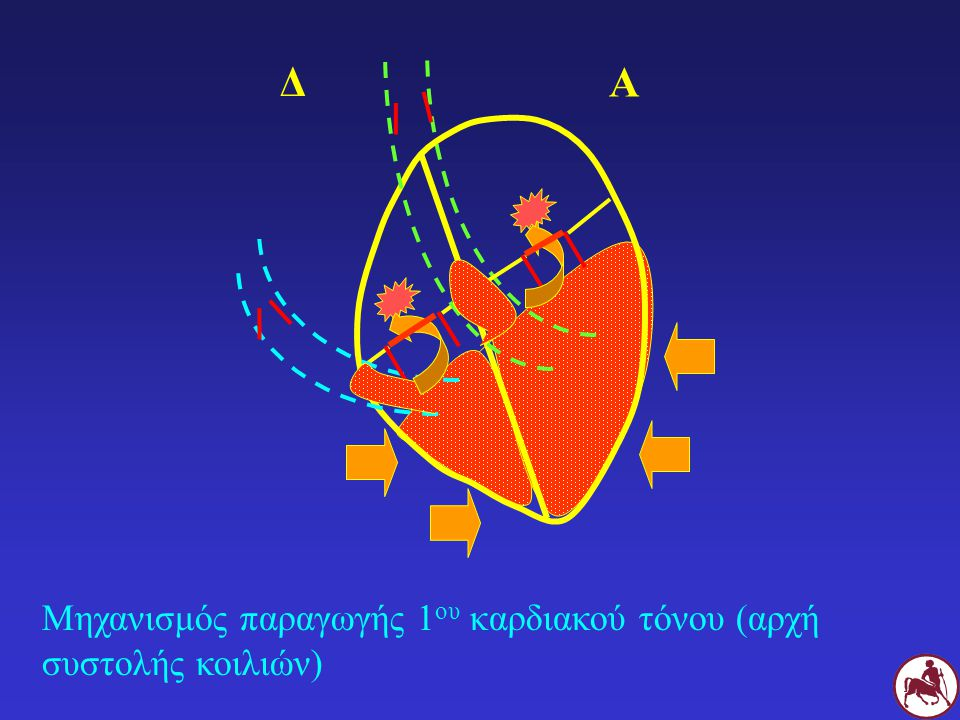 Δ Α Μηχανισμός παραγωγής 1ου καρδιακού τόνου (αρχή συστολής κοιλιών)