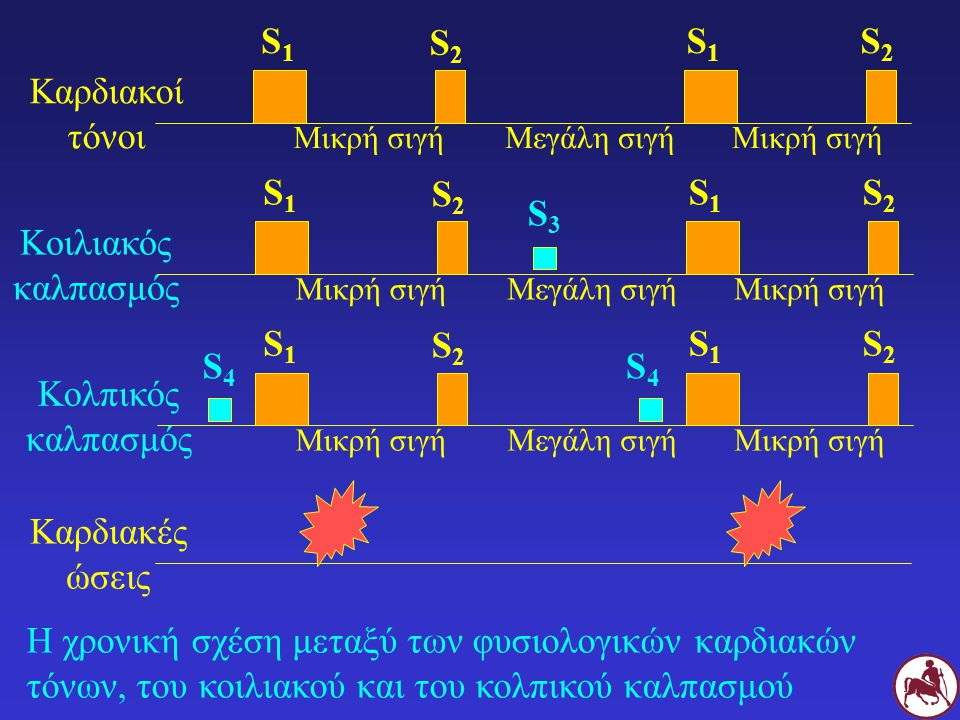 S1 S2 S1 S2 Καρδιακοί τόνοι S1 S2 S1 S2 S3 Κοιλιακός καλπασμός S1 S2