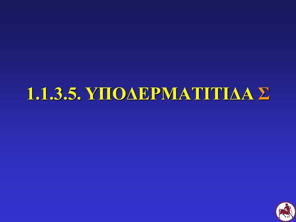 1.1.3.5. ΥΠΟΔΕΡΜΑΤΙΤΙΔΑ Σ