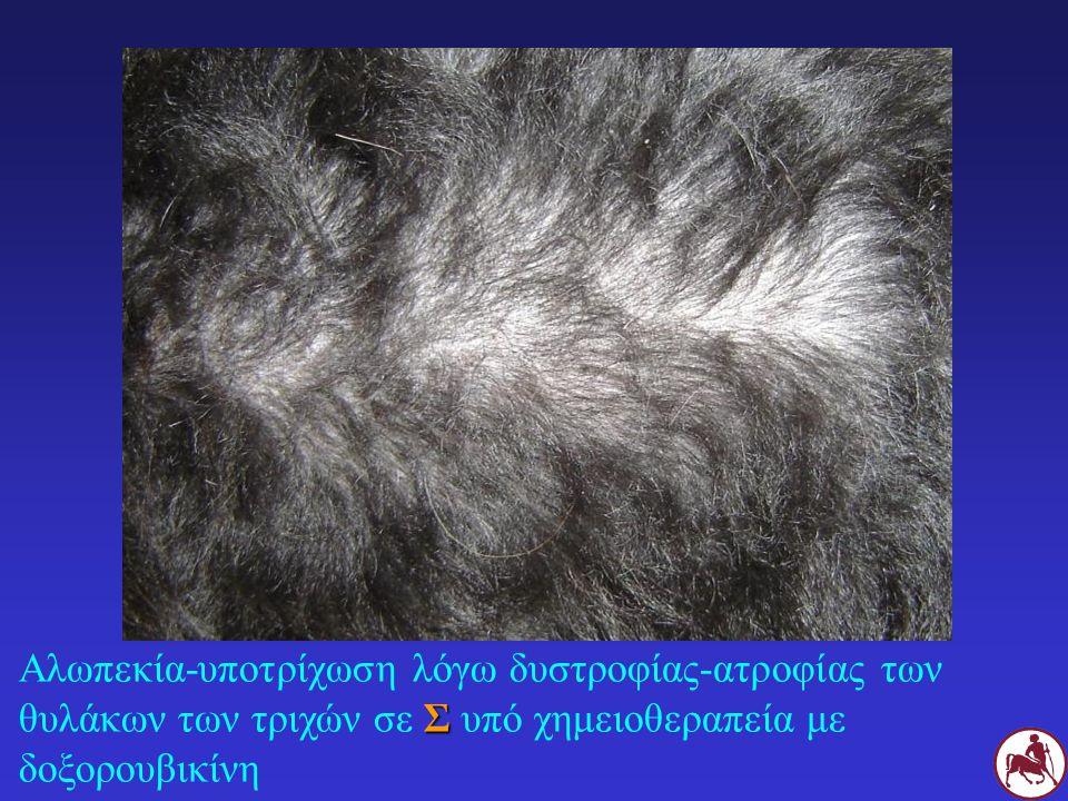 Αλωπεκία-υποτρίχωση λόγω δυστροφίας-ατροφίας των θυλάκων των τριχών σε Σ υπό χημειοθεραπεία με δοξορουβικίνη