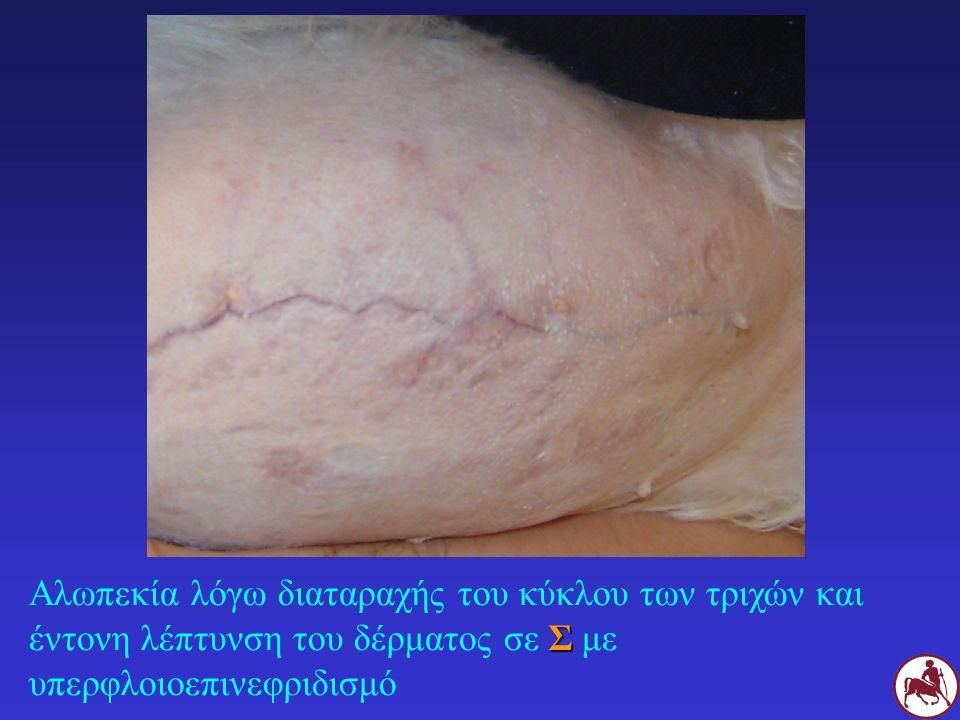 Αλωπεκία λόγω διαταραχής του κύκλου των τριχών και έντονη λέπτυνση του δέρματος σε Σ με υπερφλοιοεπινεφριδισμό