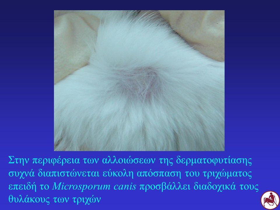 Στην περιφέρεια των αλλοιώσεων της δερματοφυτίασης συχνά διαπιστώνεται εύκολη απόσπαση του τριχώματος επειδή το Microsporum canis προσβάλλει διαδοχικά τους θυλάκους των τριχών