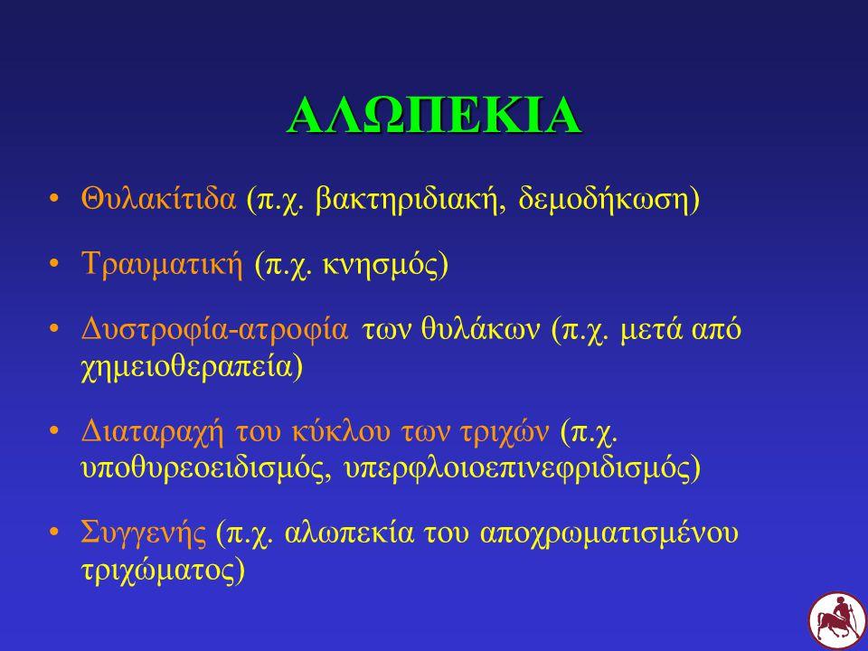 ΑΛΩΠΕΚΙΑ Θυλακίτιδα (π.χ. βακτηριδιακή, δεμοδήκωση)