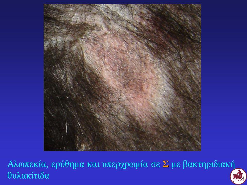 Αλωπεκία, ερύθημα και υπερχρωμία σε Σ με βακτηριδιακή θυλακίτιδα