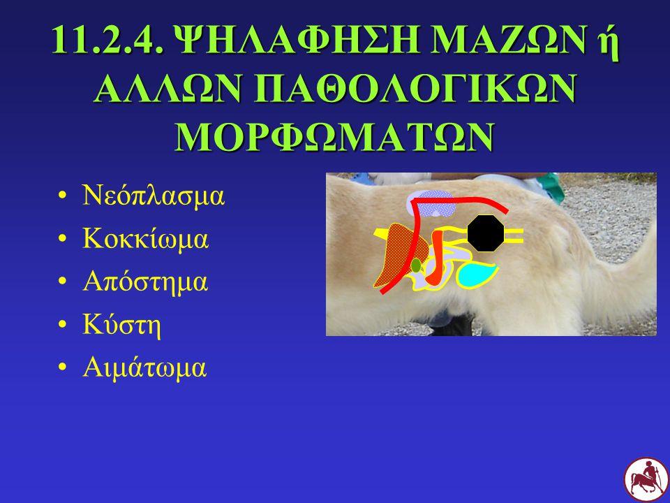 11.2.4. ΨΗΛΑΦΗΣΗ ΜΑΖΩΝ ή ΑΛΛΩΝ ΠΑΘΟΛΟΓΙΚΩΝ ΜΟΡΦΩΜΑΤΩΝ