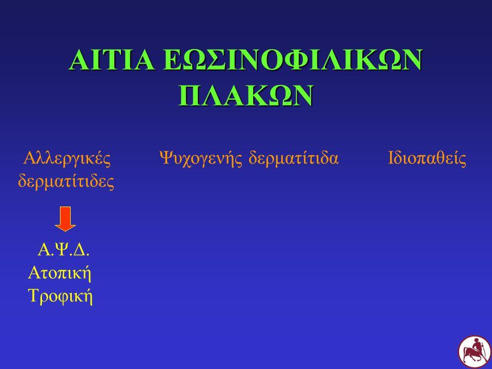 ΑΙΤΙΑ ΕΩΣΙΝΟΦΙΛΙΚΩΝ ΠΛΑΚΩΝ