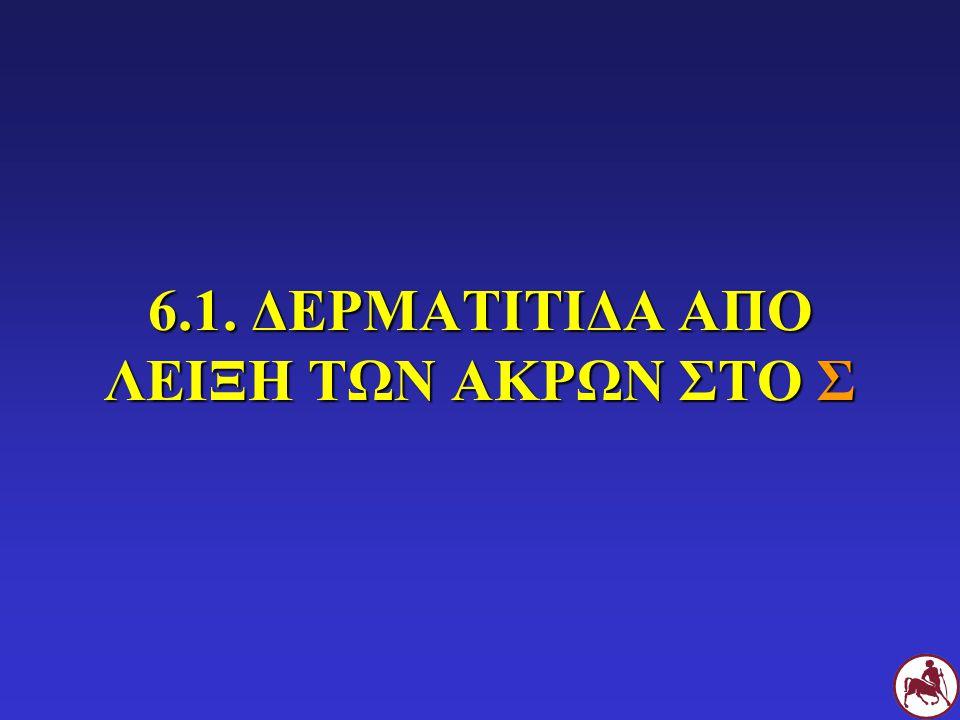 6.1. ΔΕΡΜΑΤΙΤΙΔΑ ΑΠΟ ΛΕΙΞΗ ΤΩΝ ΑΚΡΩΝ ΣΤΟ Σ