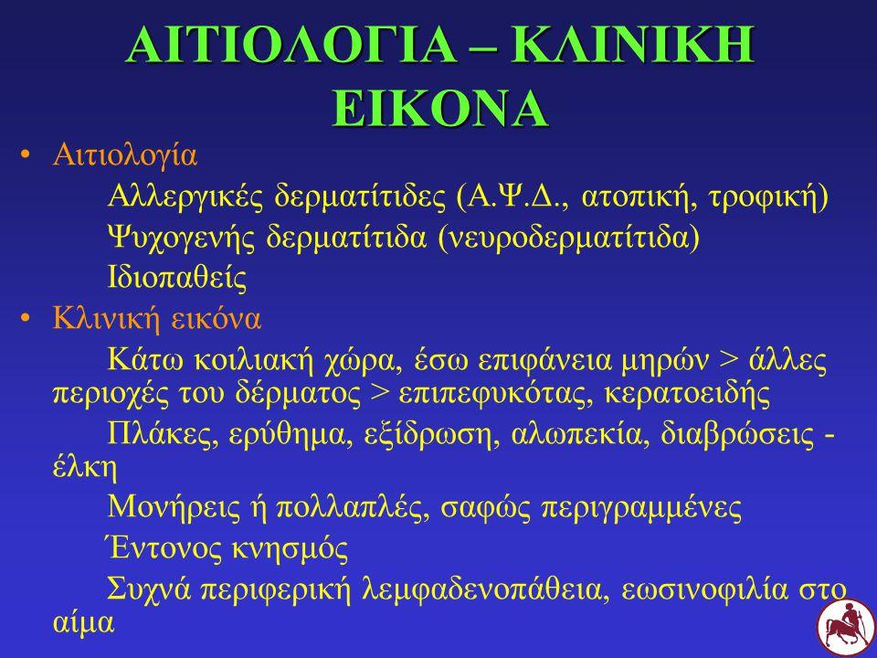 ΑΙΤΙΟΛΟΓΙΑ – ΚΛΙΝΙΚΗ ΕΙΚΟΝΑ