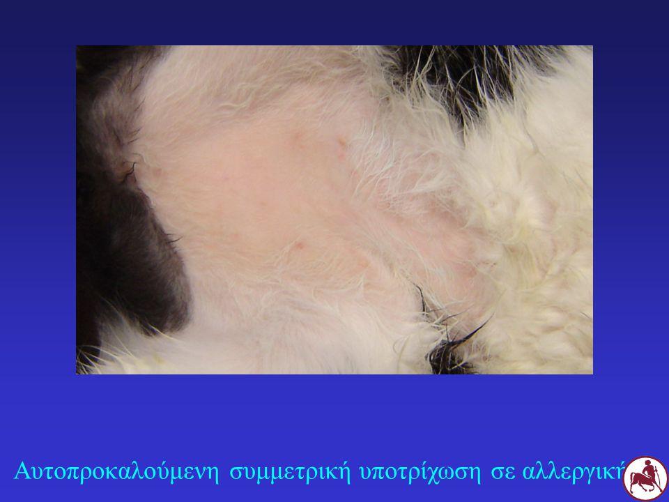 Αυτοπροκαλούμενη συμμετρική υποτρίχωση σε αλλεργική Γ