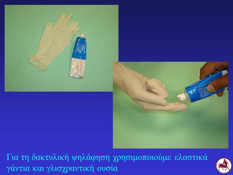 Για τη δακτυλική ψηλάφηση χρησιμοποιούμε ελαστικά γάντια και γλισχραντική ουσία