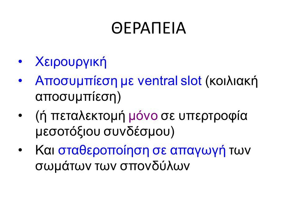 ΘΕΡΑΠΕΙΑ Χειρουργική. Αποσυμπίεση με ventral slot (κοιλιακή αποσυμπίεση) (ή πεταλεκτομή μόνο σε υπερτροφία μεσοτόξιου συνδέσμου)