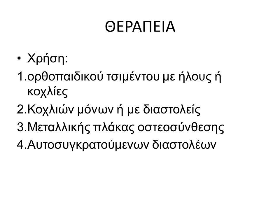 ΘΕΡΑΠΕΙΑ Χρήση: ορθοπαιδικού τσιμέντου με ήλους ή κοχλίες