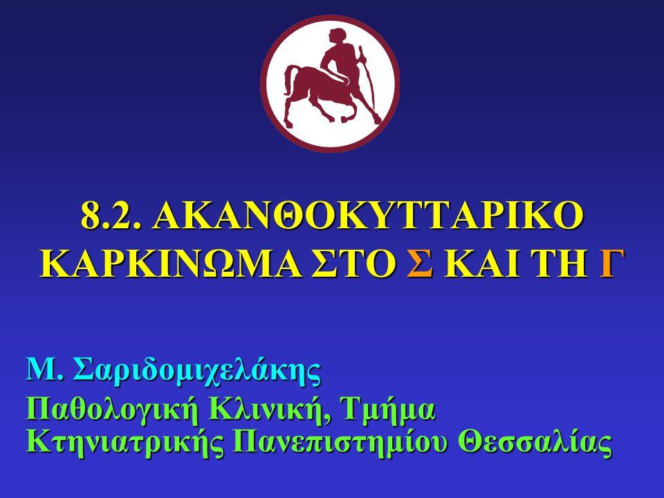 8.2. ΑΚΑΝΘΟΚΥΤΤΑΡΙΚΟ ΚΑΡΚΙΝΩΜΑ ΣΤΟ Σ ΚΑΙ ΤΗ Γ