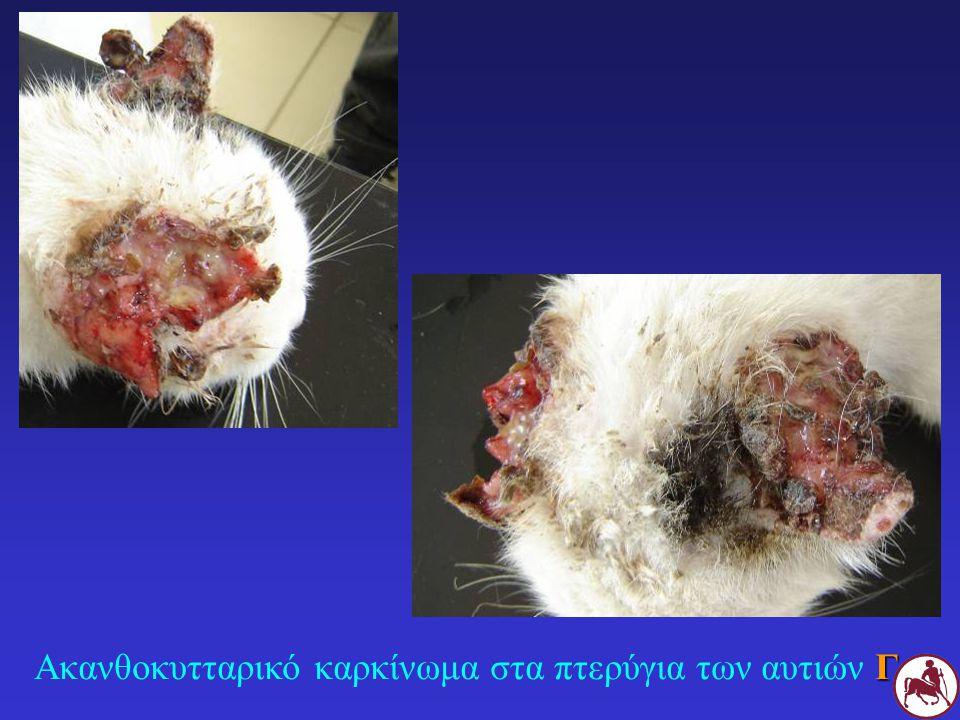 Ακανθοκυτταρικό καρκίνωμα στα πτερύγια των αυτιών Γ