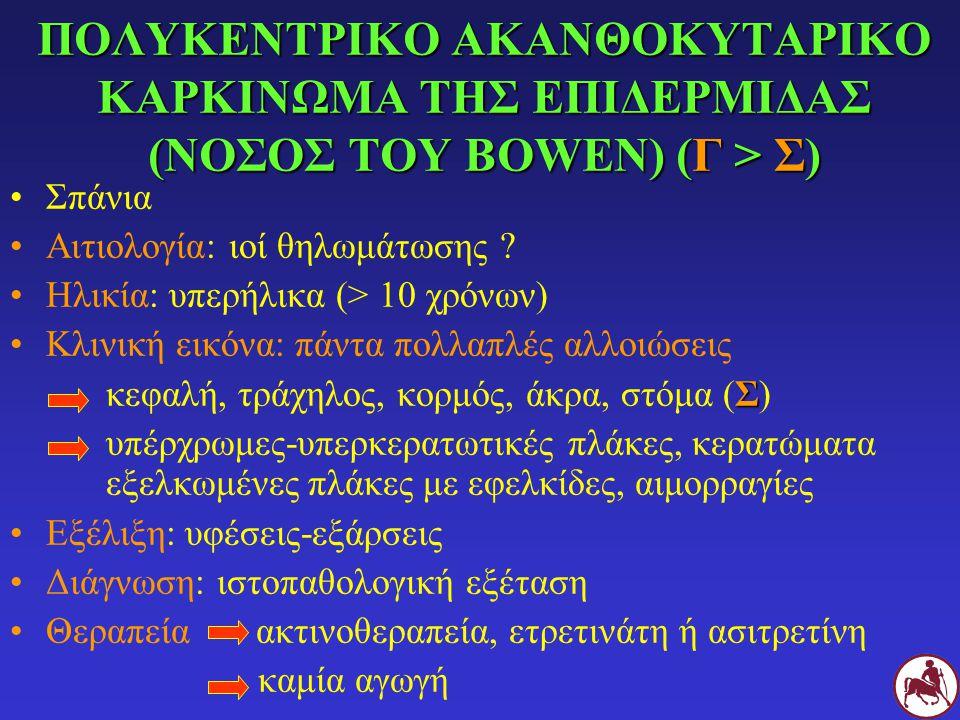 ΠΟΛΥΚΕΝΤΡΙΚΟ ΑΚΑΝΘΟΚΥΤΑΡΙΚΟ ΚΑΡΚΙΝΩΜΑ ΤΗΣ ΕΠΙΔΕΡΜΙΔΑΣ (ΝΟΣΟΣ ΤΟΥ BOWEN) (Γ > Σ)