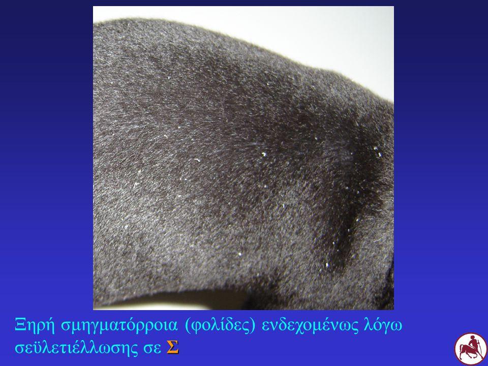 Ξηρή σμηγματόρροια (φολίδες) ενδεχομένως λόγω σεϋλετιέλλωσης σε Σ