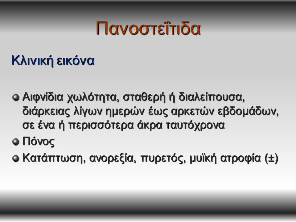 Πανοστεΐτιδα Κλινική εικόνα