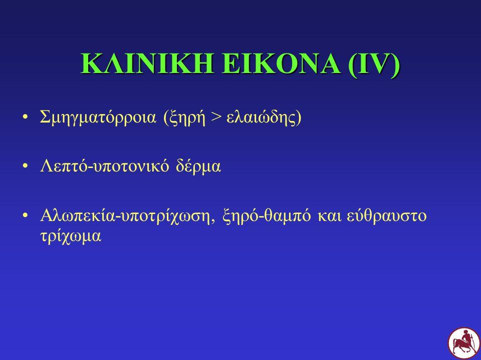 ΚΛΙΝΙΚΗ ΕΙΚΟΝΑ (ΙV) Σμηγματόρροια (ξηρή > ελαιώδης)