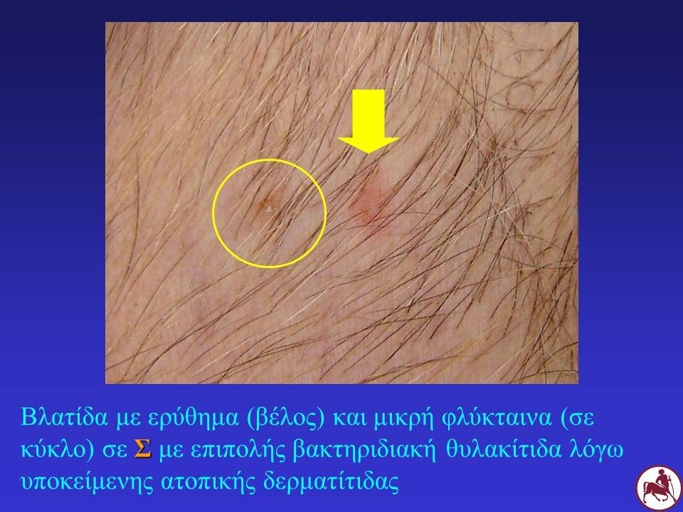 Βλατίδα με ερύθημα (βέλος) και μικρή φλύκταινα (σε κύκλο) σε Σ με επιπολής βακτηριδιακή θυλακίτιδα λόγω υποκείμενης ατοπικής δερματίτιδας