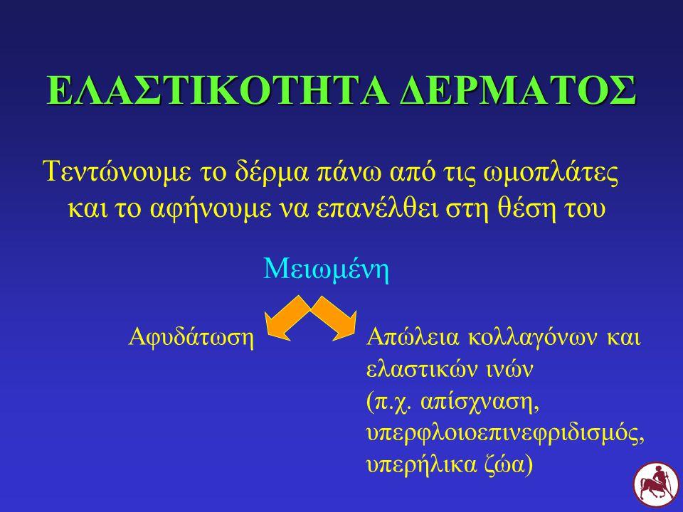 ΕΛΑΣΤΙΚΟΤΗΤΑ ΔΕΡΜΑΤΟΣ