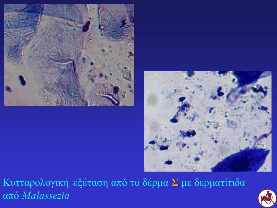 Κυτταρολογική εξέταση από το δέρμα Σ με δερματίτιδα από Malassezia
