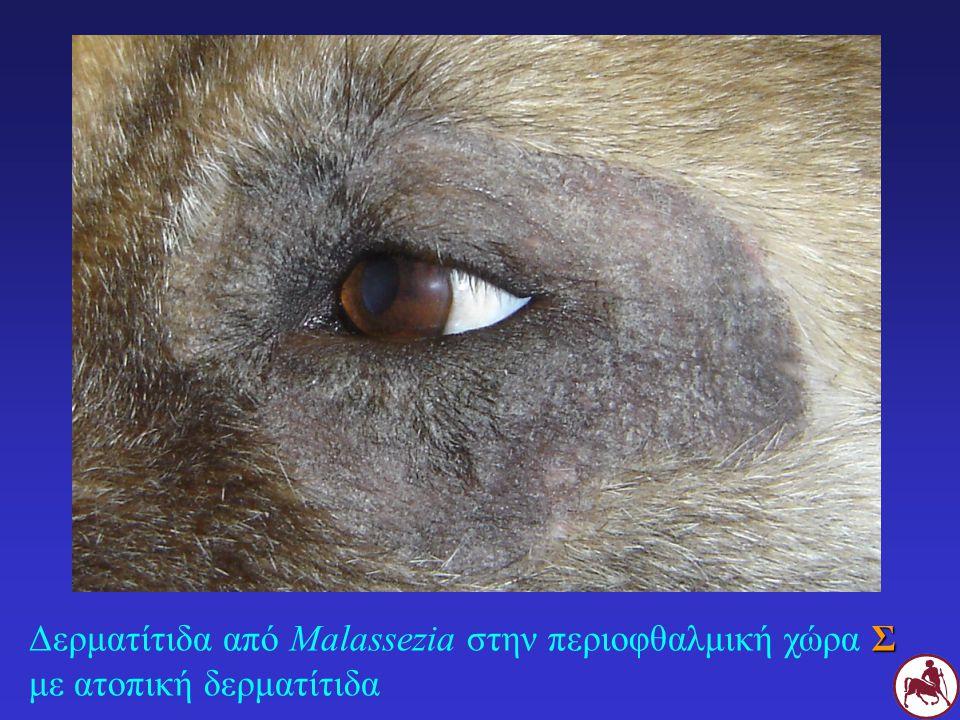 Δερματίτιδα από Malassezia στην περιοφθαλμική χώρα Σ με ατοπική δερματίτιδα