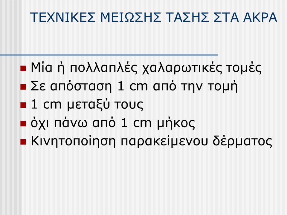 ΤΕΧΝΙΚΕΣ ΜΕΙΩΣΗΣ ΤΑΣΗΣ ΣΤΑ ΑΚΡΑ