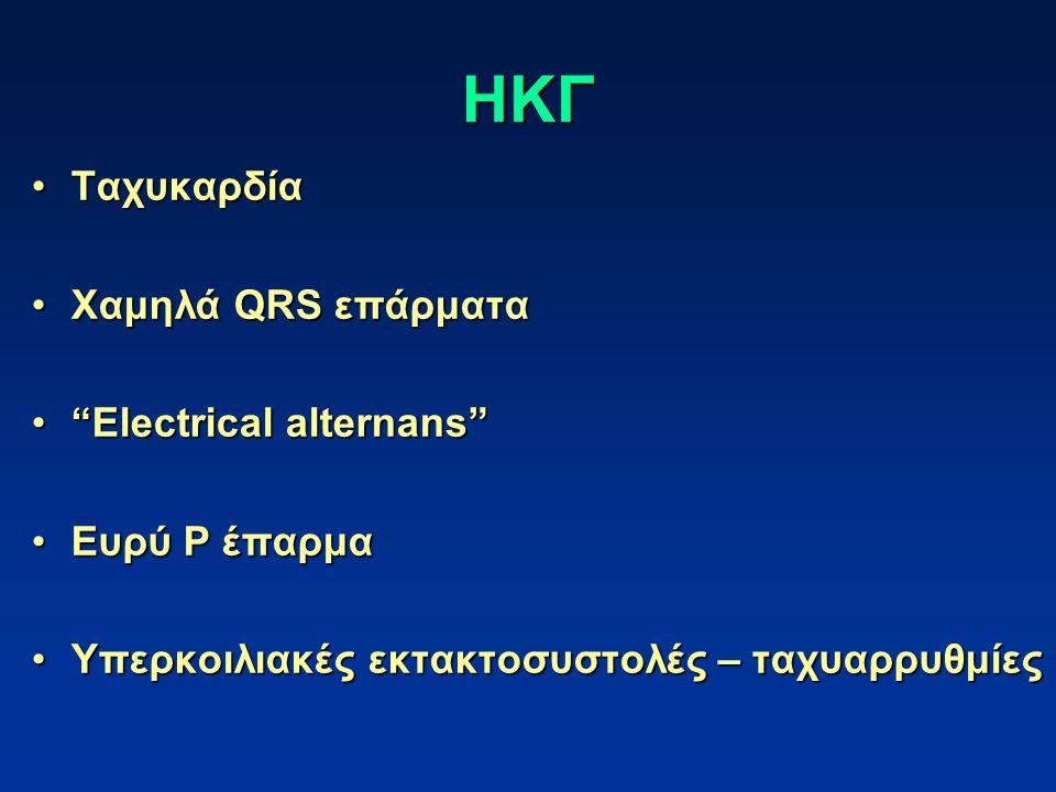 ΗΚΓ Ταχυκαρδία Χαμηλά QRS επάρματα Electrical alternans