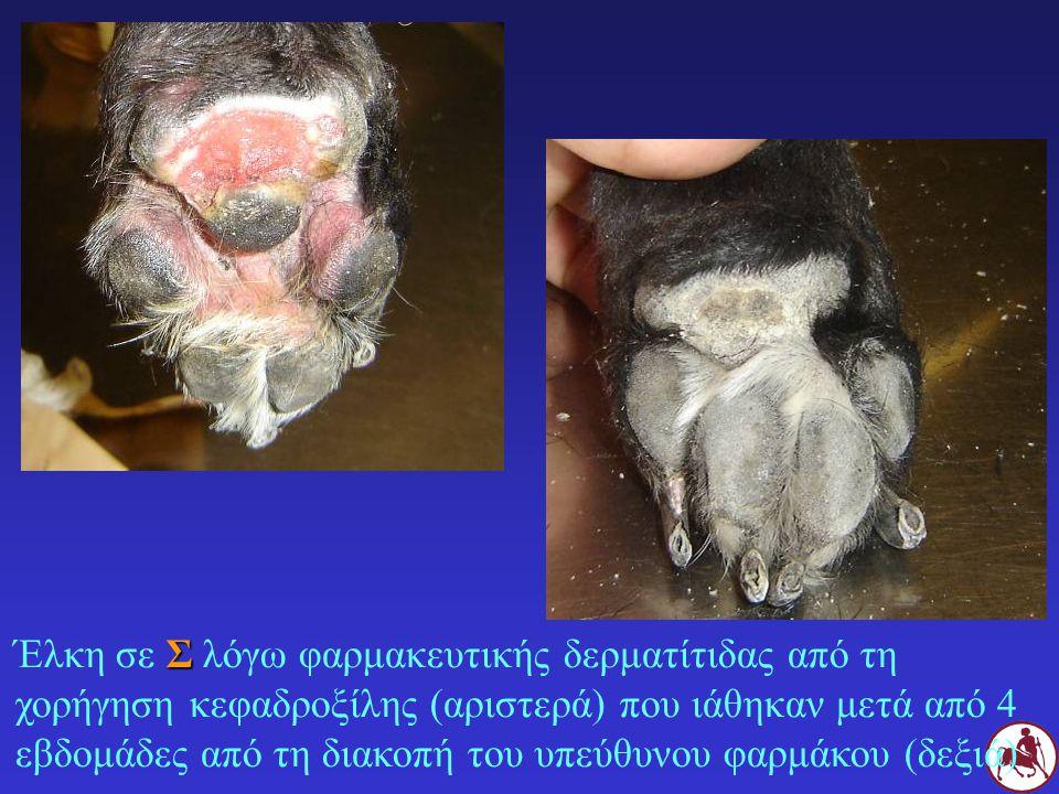 Έλκη σε Σ λόγω φαρμακευτικής δερματίτιδας από τη χορήγηση κεφαδροξίλης (αριστερά) που ιάθηκαν μετά από 4 εβδομάδες από τη διακοπή του υπεύθυνου φαρμάκου (δεξιά)