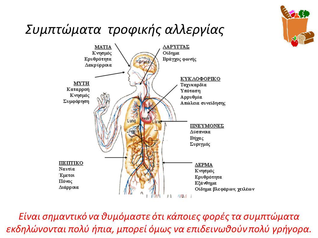 Συμπτώματα τροφικής αλλεργίας