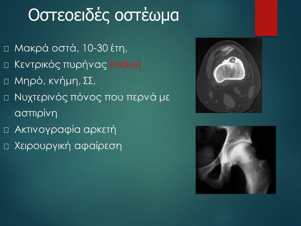 Οστεοειδές οστέωμα Μακρά οστά, 10-30 έτη, Κεντρικός πυρήνας (nidus)