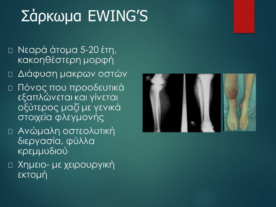 Σάρκωμα EWING'S Νεαρά άτομα 5-20 έτη, κακοηθέστερη μορφή